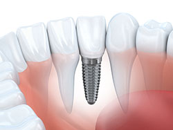Dental Implant NJ